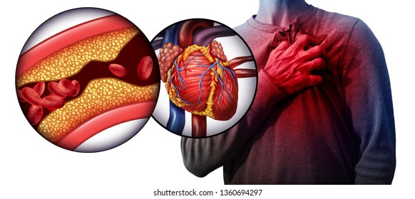 Myocardial infarction as a person suffering from a heart attack due to clogged coronary artery as a cardiology distress symbol with 3D illustration elements.
