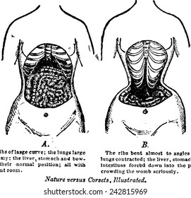 0ceb70e2eda Nature Versus Corsets.  A woman s internal anatomy