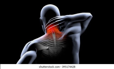 neck contracture
