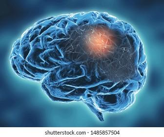 Neurodegenerative disease concept 3d illustration.