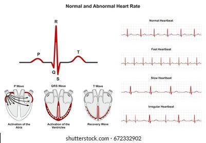 Normal and Abnormal Heart Rate infographic diagram including activation of atria ventricle recovery wave also chart of normal fast slow irregular heartbeats for medical science education