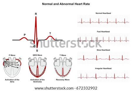 Normal Abnormal Heart Rate Infographic Diagram Stock Illustration