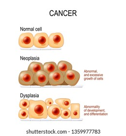 Normal cells, Dysplasia (abnormality of development, and differentiation), and Neoplasia (Abnormal, and excessive growth of cells). different. diagram for educational, medical, biological and science