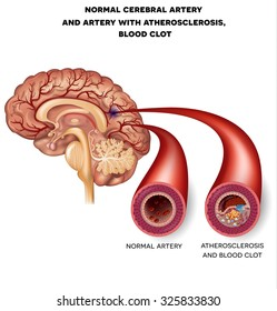 Normal cerebral artery and artery with atherosclerosis and blood clot.  Blocked blood flow by the thrombus.