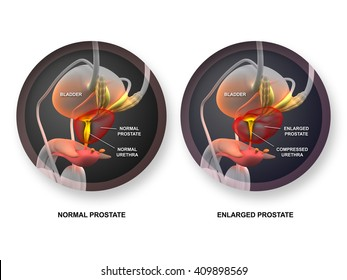 Normal vs Enlarged Prostate - Acute Prostatitis isolated on white - 3D illustration