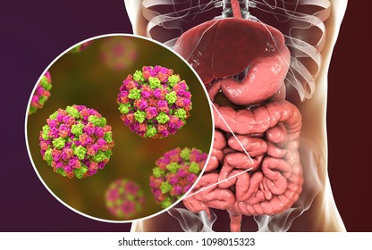 Norovirus in human intestine, also called winter vomiting bug, RNA virus from Caliciviridae family, causative agent of gastroenteritis with diarrhea, vomiting, stomach pain. 3D illustration
