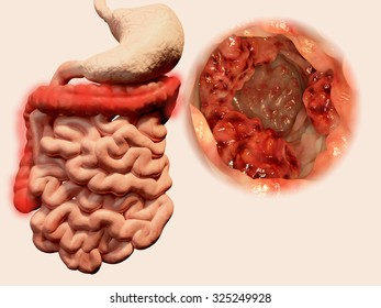 Occurrence of malign tumors in the gastrointestinal tract