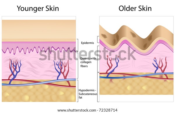 Old Skin Anatomy Characterized By Presence Stock Illustration 72328714