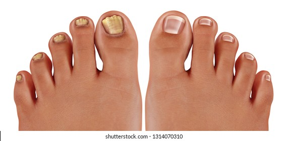 Onychomycosis and fungal nail infection or tinea unguium as an infected foot toenail or toe nail with damaged unhealthy and healthy human anatomy in a 3D illustration style.