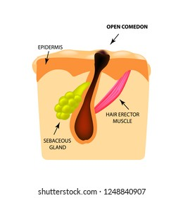 Open comedones. black head acne. The structure of the skin. Infographics. illustration on isolated background.