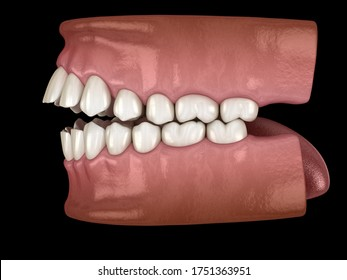 Openbite dental occlusion ( Malocclusion of teeth ). Medically accurate tooth 3D illustration
