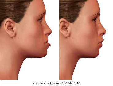 orthognathic surgery, correction of human mandible deformity, before and after, side view. 3D Rendering
