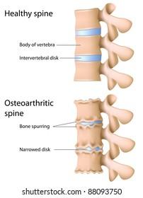 Osteoarthritis of intervertebral joints