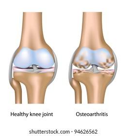 Knee joint anatomy labeled stock illustration 228843262 shutterstock osteoarthritis of knee joint ccuart Gallery