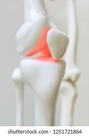 Osteoarthritis-covered knee - 3D Rendering