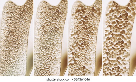Osteoporosis 4 stages in one picture - 3d rendering
