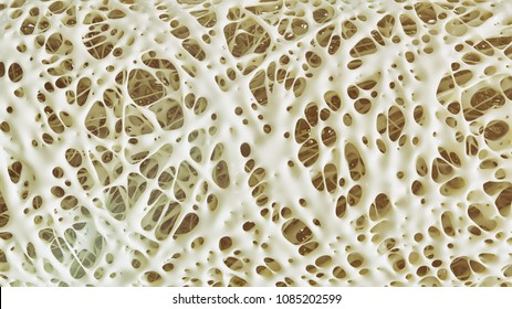 Osteoporosis advanced -high details - Stage 4 - 3d rendering