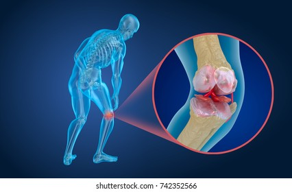 Osteoporosis of the knee joint,  Medically accurate 3D illustration