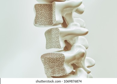 Osteoporosis on the spine - 3d rendering