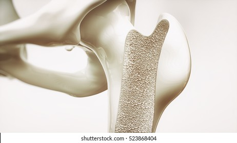 Osteoporosis stage 1 of 4 - upper limb bones - 3d rendering