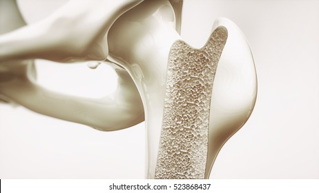 Osteoporosis stage 2 of 4 - upper limb bones - 3d rendering