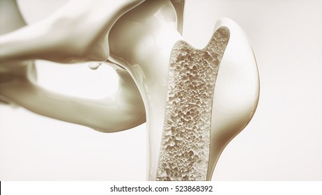 Osteoporosis stage 3 of 4 - upper limb bones - 3d rendering