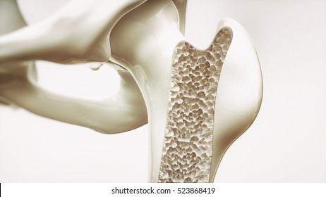 Osteoporosis stage 4 of 4 - upper limb bones - 3d rendering