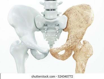Osteoporosis upper limb bones - 3d rendering