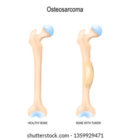 Osteosarcoma. Osteogenic sarcoma is a cancerous tumor in a bone. malignant neoplasm. Two human bones: healthy femur and bone with osteosarcoma. illustration for biological, science, medical use.