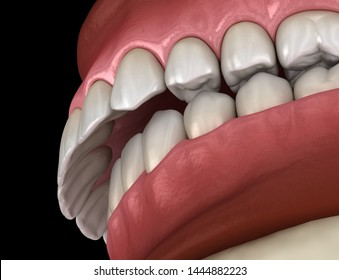 Overbite dental occlusion ( Malocclusion of teeth ). Medically accurate tooth 3D illustration