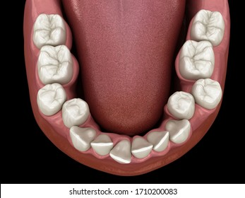 Overcrowded teeth, abnormal dental occlusion. Medically accurate tooth 3D illustration