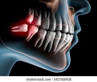 Pain caused by wisdom teeth - 3D illustration