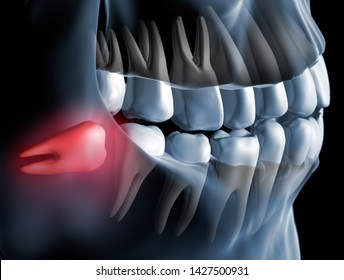 Pain caused by wisdom teeth closeup - 3D illustration