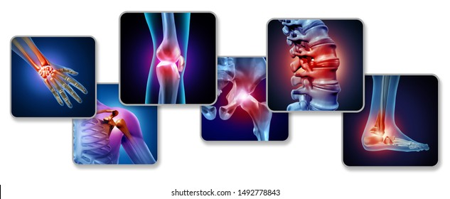 Pain of the joints concept as skeleton and muscle anatomy with a group of sore joints as a painful injury or arthritis illness symbol for medical health care with 3D illustration elements.