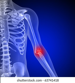 Painful Elbow, Tennis Elbow