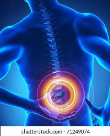 Painful lumbar spine part