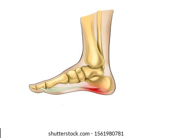 Painful Plantar fasciitis  ligament feet disorder . Study education medical scheme diagram high resolition picture for book orthopedic leg disease.  isolated on white background.no label.