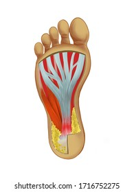 Painful Plantar fasciitis  ligament feet disorder . Study education medical scheme diagram high resolition picture for book orthopedic leg disease.  isolated on white background.