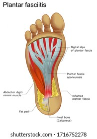 Painful Plantar fasciitis  ligament feet disorder . Study education medical scheme diagram high resolition picture for book orthopedic leg disease.  isolated on white background.Labeled.