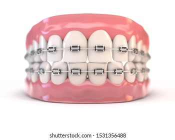A pair of upper and lower sets of perfect human teeth fitted with steel dental braces on an isolated background - 3D render