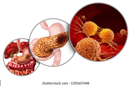 Pancreas cancer anatomy diagram and pancreatic malignant tumor concept as a medical symbol of a digestive gland body part as mutating cells with 3D illustration elements.