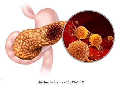 Pancreatic cancer anatomy concept and Pancreas malignant tumor symbol as a digestive gland body part with a microscopic magnification of malignant tumor cells spreading with 3D illustration elements.