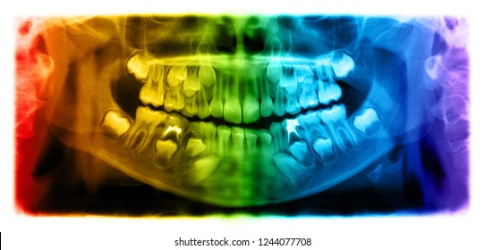 Panoramic radiograph is a scanning dental X-ray of the upper jaw maxilla and lower jawbone mandible a child aged 7 seven years.