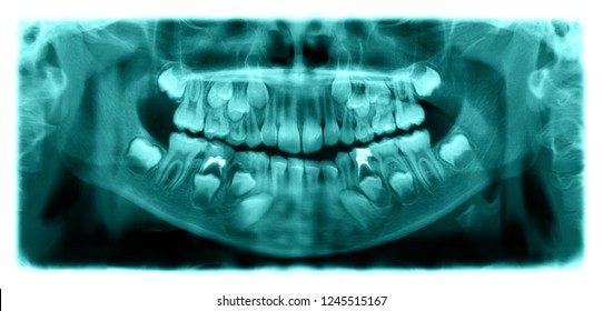 Panoramic radiograph is a scanning dental X-ray of the upper jaw maxilla and lower jawbone mandible a child aged 7 seven years. This image is colored in shades of green.