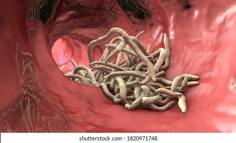 Parasitic worms in the lumen of intestine, 3D illustration. Ascaris lumbricoides and other round worms