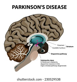 Parkinsons Disease. Cross-section of the human brain showing the substantia nigra, the region affected by Parkinsons disease. Illustration shows Neuronal Pathways that Degenerate in Parkinsons Disease