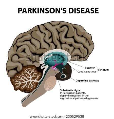 Parkinsons Disease Crosssection Human Brain Showing ...