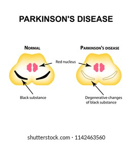 Parkinson's disease. Degenerative changes in the brain are a black substance. illustration on isolated background
