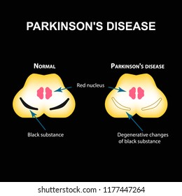 Parkinson's disease. Degenerative changes in the brain are a black substance. illustration on black background
