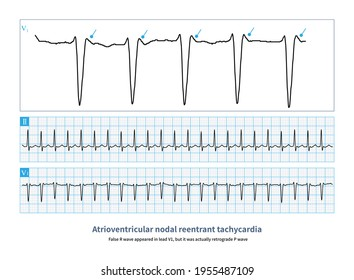 Paroxysmal atrioventricular nodal reentrant tachycardia is usually a narrow QRS complex tachycardia with rapid and regular ventricular rate.